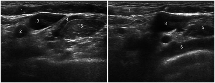 Transverse scans of left lower neck. 1, sternocleidomastoid; 2, common carotid artery; 3, internal jugular vein; 4, transverse cervical artery; 5, anterior scalene muscle; 6, subclavian artery. Note that subclavian artery is seated deep to anterior scalene muscle.