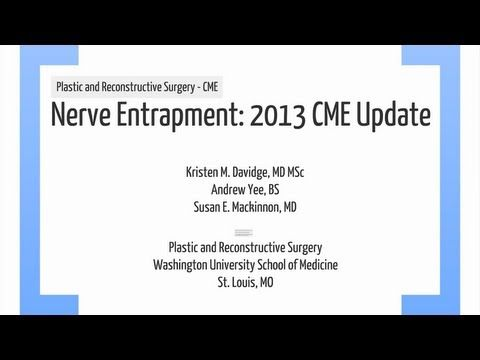 2013 CME presentation overviews the etiology, evaluation, and management of common compression neuropathies of the upper extremity. This includes a discussion on thoracic outlet syndrome, cubital tunnel syndrome, and carpal tunnel syndrome in additional to other compression neuropathies. (A compliment to the CME article on nerve entrapment submitted to the Plastic and Reconstructive Surgery journal)