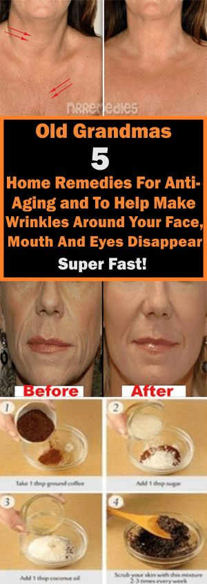 Old Grandmas 5 Home Remedies For Anti-Aging and To Help Make Wrinkles Around Your Face, Mouth And Eyes Disappear Super Fast! –