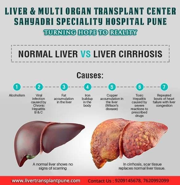 Normal Liver Vs Liver Cirrhosis Chronic Liver Damage From A Variety Of Causes Leading To Scarring And Liver Failure Liver Failure Liver Organ Transplant