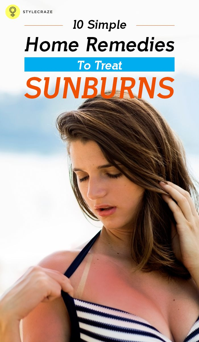 10 Simple Home Remedies To Treat Sunburns: To get relief from sunburn, you don't need to run to the drugstore. All you need to do is rummage through your kitchen cabinets and reach out for these miraculous home remedies for sunburn relief.