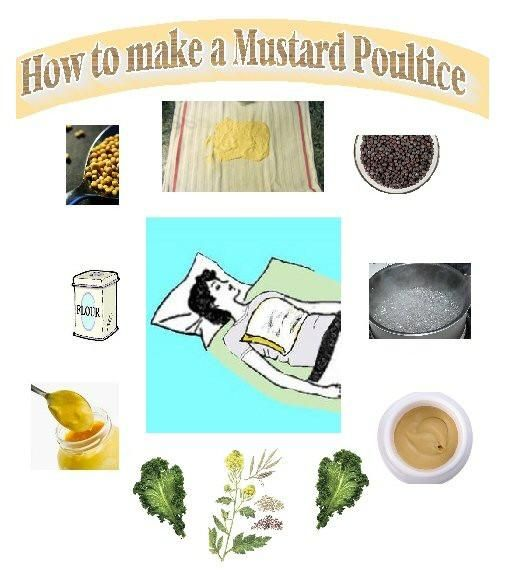 A mustard poultice is a time-honored therapy: Your great-grandmother may have used mustard poultices and plasters to treat congestion, coughs, bronchitis or pneumonia.