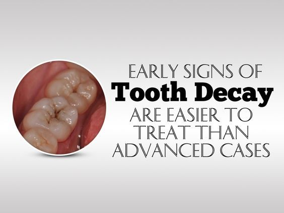 Early signs of tooth decay are easier to treat than advanced cases.