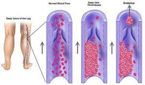 Trombose Wat is het: Het ontstaan van een bloedstolsel in een bloedvat Oorzaak: 1.Een onregelmatige bloedvatwand ◦roken ◦hoog cholesterolgehalte ◦diabetes ◦hoge bloeddruk 2.Een trage bloedstroom◦langdurige bedrust ◦boezemfibrilleren ◦na een operatie ◦gipsbeen ◦lange vlieg- en busreizen 3.Een veranderende samenstelling van het bloed◦tekort bepaalde remmers (proteïne S, proteïne C) ◦teveel aan bloedcellen Behandeling: Medicatie