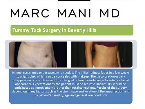 Marc Mani, MD cosmetic surgeon beverly hills
