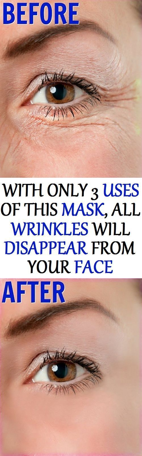 best health u care images on pinterest home remedies beauty