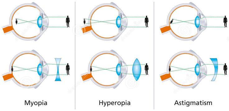 Defectos visuales - miopía, hipermetropía y astigmatismo Visitar página (1300×632)  http://i.imgur.com/6o2ym8Q.jpg ojos mala vision vista deficiente. - SINTOMAS DEL ASTIGMATISMO https://www.youtube.com/watch?v=YK1RMh0ROmY COMO CORREGIR LA MIOPIA http://www.ignisnatura.cl/como-se-puede-corregir-la-miopia-sin-necesidad-de-cirugia/