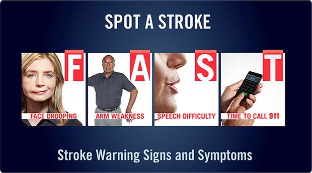 FAST stroke symptoms to look for.