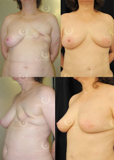 Victoria's Secret Says No To Mastectomy Bra