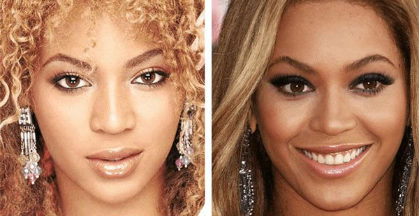 Beyonce Nose Job Before After Pics ,    Pores and skin Lighteners. Beyonce plastic surgery will be the one that involved a substantial switch associated with her pores and skin as well... , Admin , http://www.listdeluxe.com/2015/11/24/beyonce-nose-job-pics/ ,  #After #Before #Beyonce, ,