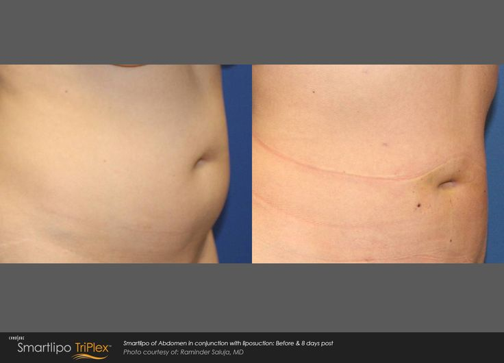 25 best smartlipo triplex images on pinterest
