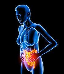 Síndrome colon irritable (SCI) – | Dr. Daniel Slobodianik C.    ¿Qué es el síndrome del colon irritable? El síndrome del colon irritable es un trastorno gastrointestinal que afecta al intestino grueso (el colon), pero no causa inflamación ni un daño permanente. Entre los síntomas comunes del síndrome del colon irritable están: • Diarrea • Estreñimiento • Dolor abdominal, abotagamiento o cólicos • Gas • Moco en las heces