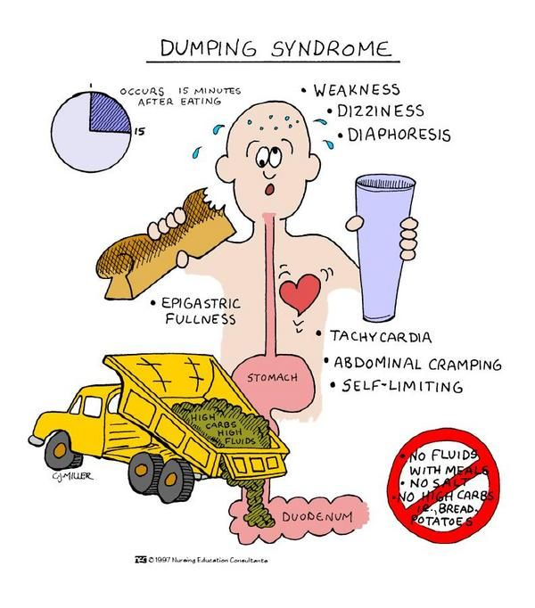 Dumping syndrome. I THINK U BROKE EVERY RULE ALL AT ONCE STEPH!!!  :)