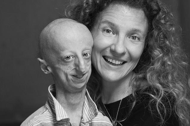 Please check my blog and meet Sammy Basso with mamma Laura #montegrotto #convegno #progeria
