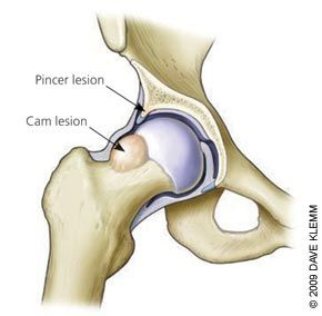 Hip Impingement. This image shows cam impingement almost identical to one of my hips.