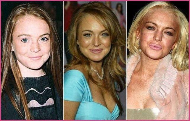 Lindsay Lohan Before and After Plastic Surgery Boob Job Bra Size Botox » Plasti...