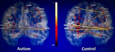 article - Brain scans could one day help diagnose autism earlier  Researchers say MRI scans show very specific brain activity that could help diagnose autism and aid people in determining early treatment options.