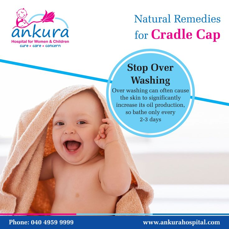 Natural Remedies for Cradle Cap: Stop overwashing: Overwashing can often cause the skin to significantly its oil production, so bathe only every 2-3 days. #CradleCap #NaturalRemedies #NaturalRemediesCradleCap #Babys #StopOverwashing #Overwashing #Bathe Ankura Hospital is a chain of state-of-the-art super speciality hospitals for women & children in Hyderabad.