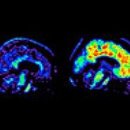 alzheimers disease paper research