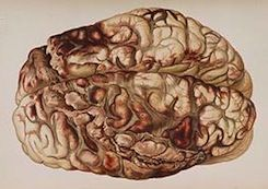 Scientists Locate Region of the Brain that Causes Selfishness