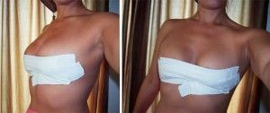 breast-taping-strapless-backless
