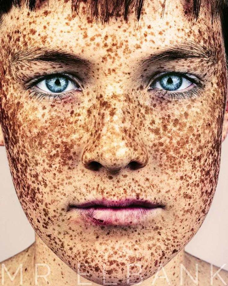 La pigmentation sur la peau sous le bras