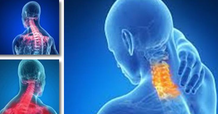 90 Second Trick Will Bring Instant Relief from a Sore Neck