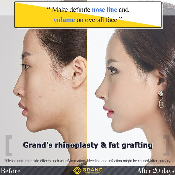 The Face With Perfect Nose Line And Beautiful Facial Volume Is Possible With Grand Plastic Surgery For Free Consultation Tel Plastic Surgery Nose Surgery Nose