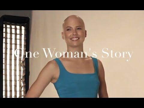One Woman's Story: Meet Ashley | Model with Alopecia & Hairloss - YouTube
