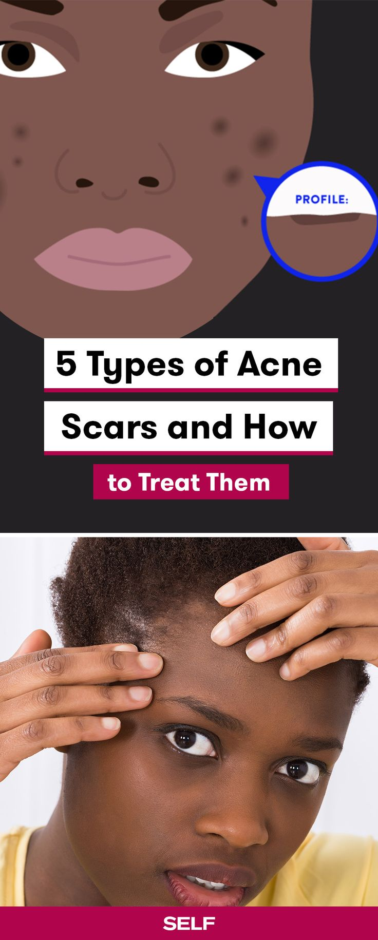 Breakouts can come and go, but the scars they leave behind can linger for years (or more). Long-lasting scars typically turn up after a recurring bout with cystic acne. Acne scars take many different forms. You might see tiny pockmarks, a swollen keloid, or a discolored area on the skin. And just like the types of scars vary, there isn't a one-size-fits-all fix. Your dermatologist can use a combination of treatments including lasers, chemical peels, or fillers to minimize the spots.