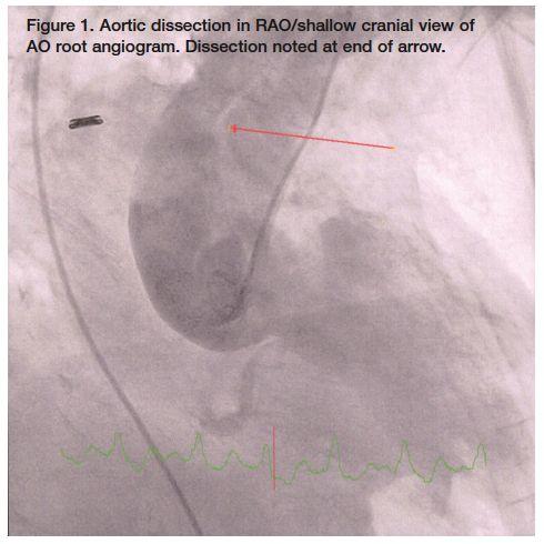 100 best Cardiac Cath Lab images on Pinterest Cardiac nursing - cath lab nurse sample resume