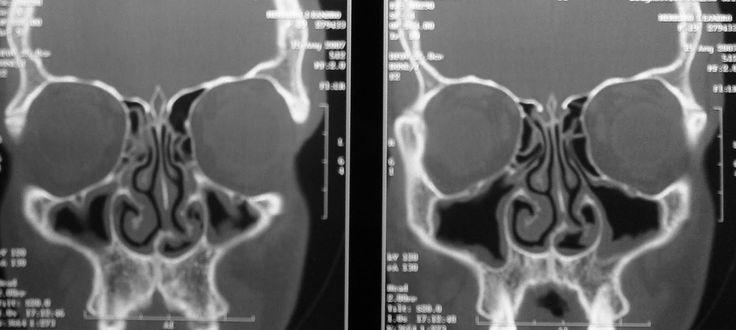 Tomografía computada en secciones coronales para estudiar los senos paranasales.¿A qué se denomina Unidad Osteomeatal?¿Cuál es su relevancia?