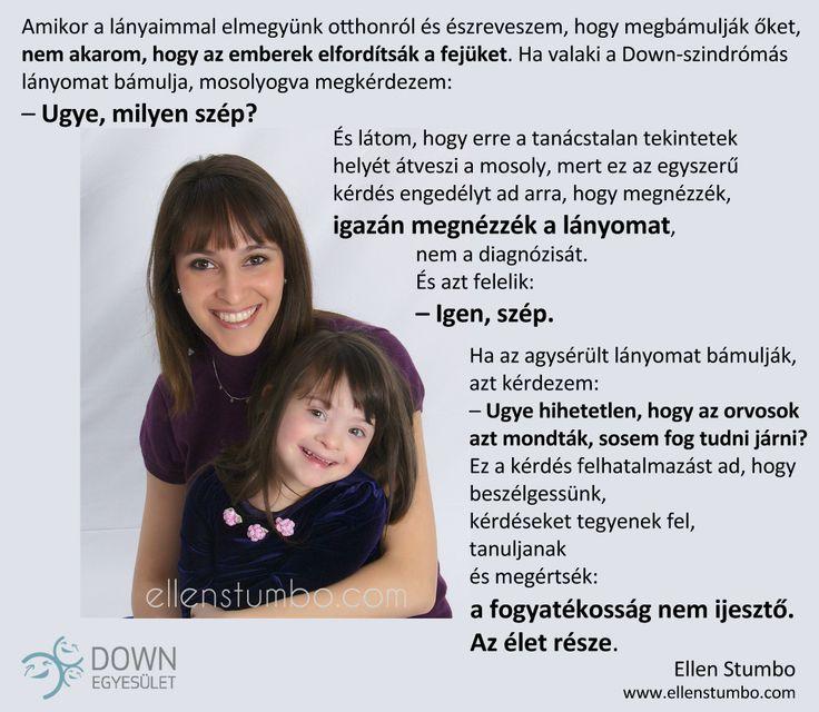 Az élet része   Down Egyesület