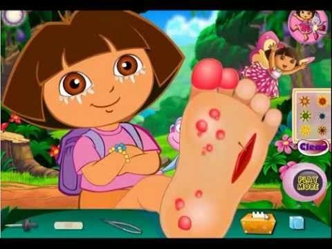 Jeu Dora au docteur pour son pied - Jeu Dora L'Exploratrice HD