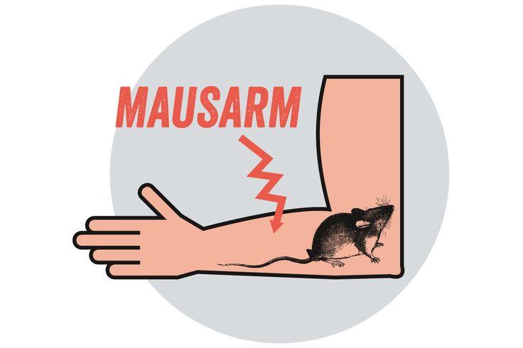 Repetitive Strain Injury (RSI) oder auch Mausarm entsteht durch Mikroverletzungen des Unterarmgewebes. Den Unterarm benötigen wir aber zum Dosenöffnen und Katzenkraulen, deshalb müssen wir sorgsam damit umgehen.