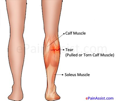 Detailed explanation of pulled calf muscles. Guide to know its causes, classification and grading, symptoms and treatment options including exercise of pulled calf muscles.