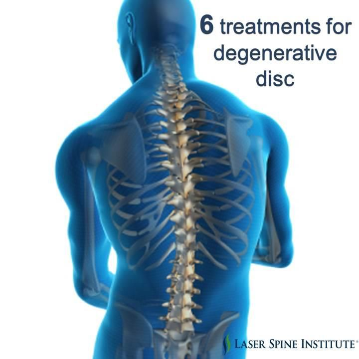 Degenerative disc disease is the gradual deterioration of discs between vertebrae. SHARE these 6 treatment options