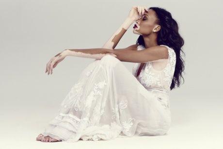 chantelle winnie | Chantelle Winnie: 'I'm proud of my skin' | Fashion | The ...