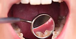 Cómo eliminar el sarro delos dientes rápidamente y en casa