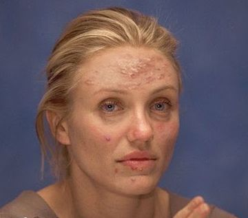 Celebrity with cystic acne