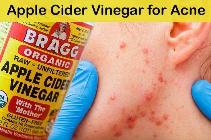 Apple Cider Vinegar for Acne 1