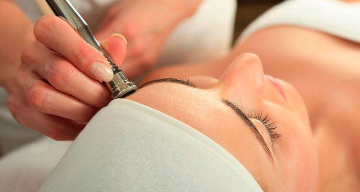 La Microdermoabrasión con punta de Diamante es un tratamiento de limpieza facial, consistente en una exfoliación precisa y controlada que se realiza en la capa cornea de la piel. De esta forma se retiran las células muertas, consiguiendo una piel más saludable y juvenil.