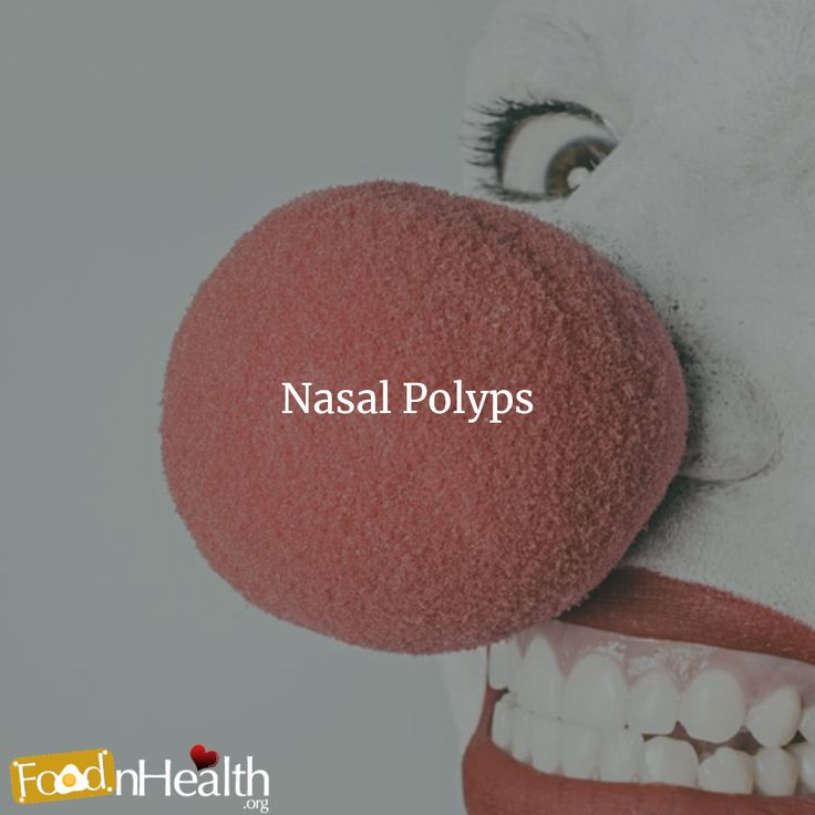 The Science Behind Nasal Polyps & 12 Most Effective Home Remedies #nasalpolyps #homeremedies #science More: http://www.herbalcart.com/blog/