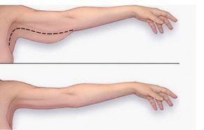 L'accumulo di grasso in eccesso nella zona del braccio è normale dopo una certa età. Dopo i 20anni, il corpo producepiù grasso, in particolare le parti e