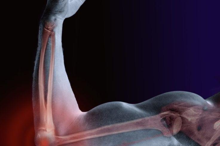 Signos y síntomas de tendinitis en el codo | Muy Fitness