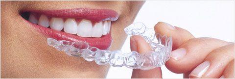 Appareil Dentaire Invisible, Appareil Dentaire Invisalign