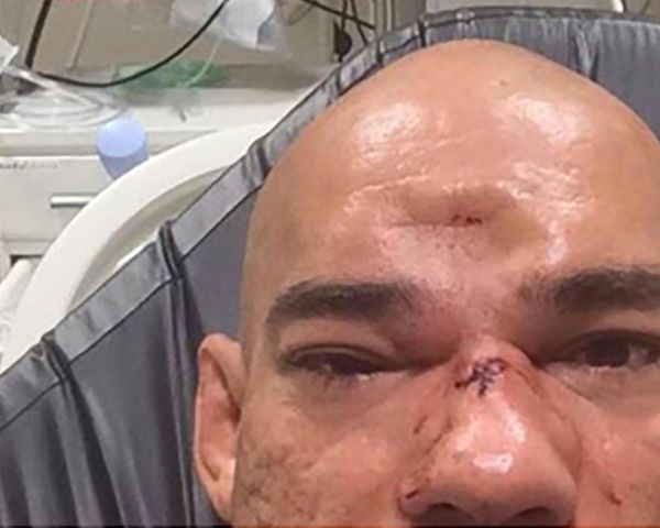 "Evangelista ""Cyborg"" Santos suffered a serious fracture in his skull during his Bellator 158 loss to Michael Venom Page on Saturday. Late in…"