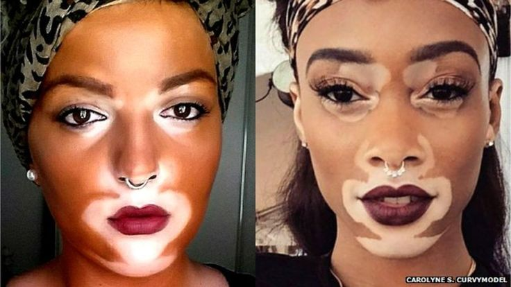 Was it racist when some white fans of the model Winnie Harlow painted their skin to look like they too had vitiligo?