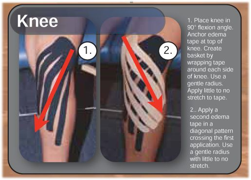 Edema Taping Instructions For The Knee From Rocktape