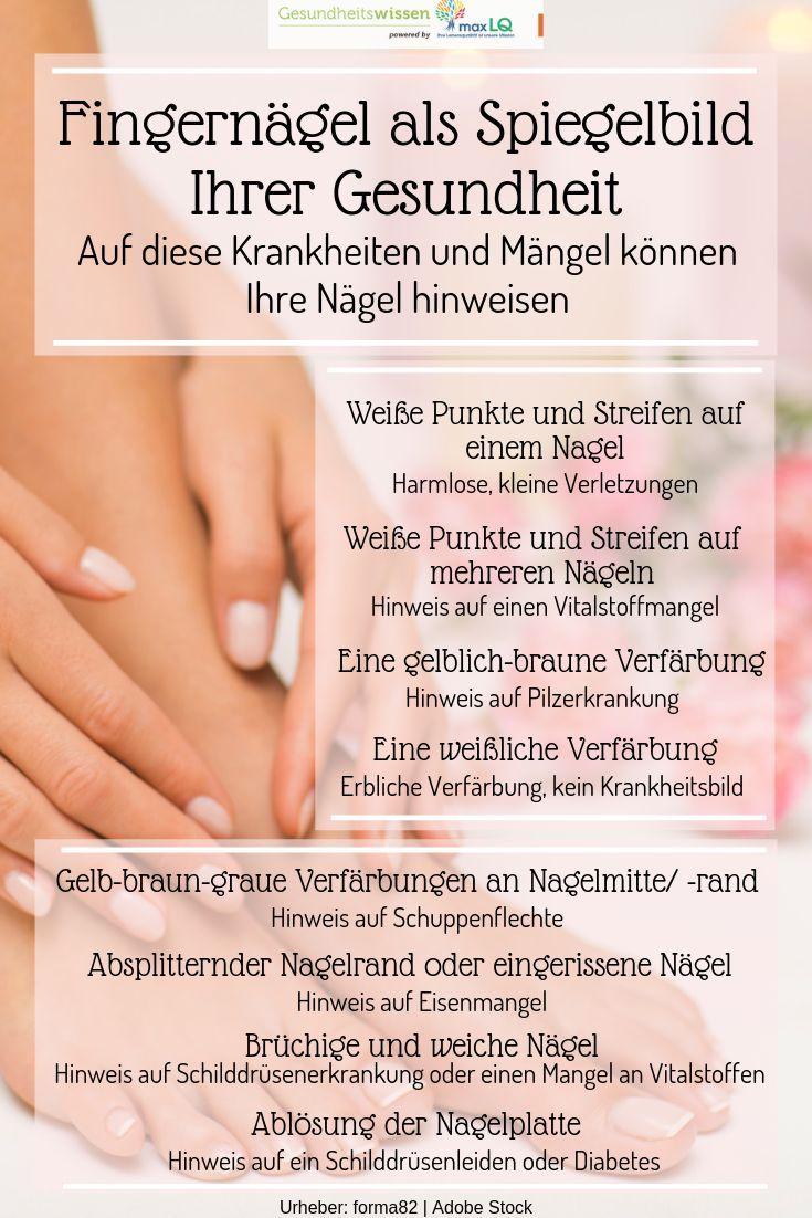 Fingernägel spiegeln Ihre Gesundheit wider: An diesen Krankheiten und Defekten können …   – My Board